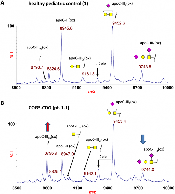 MALDI-MS profiling of serum O-glycosylation and N-glycosylation in COG5-CDG
